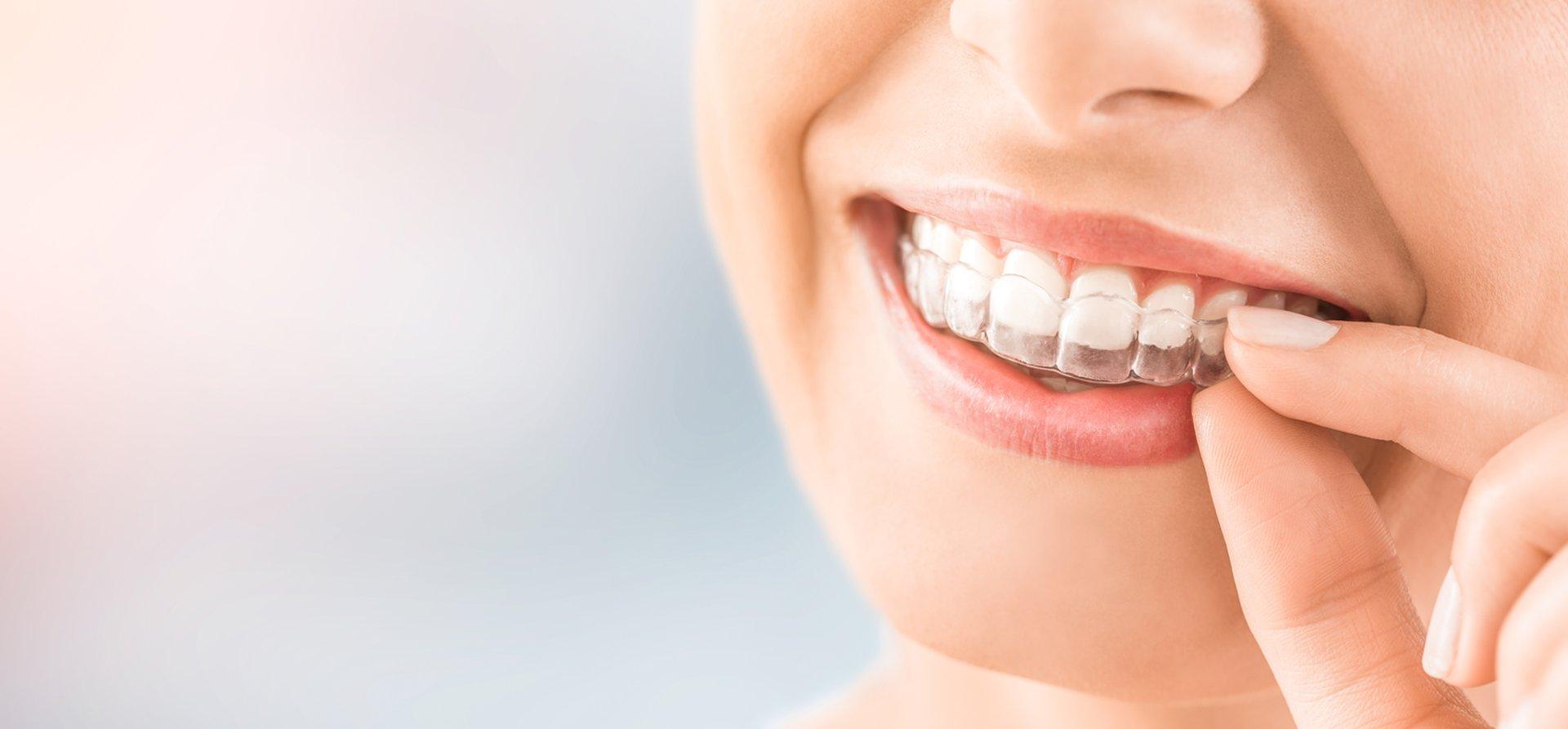 Niewidoczna ortodoncja invisalign